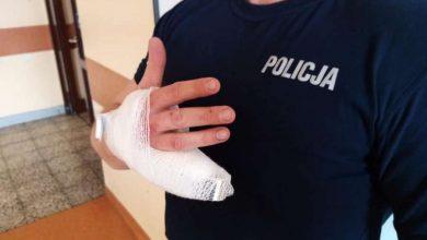 Photo of Kierowca odgryzł policjantowi fragment palca. Film z pościgu